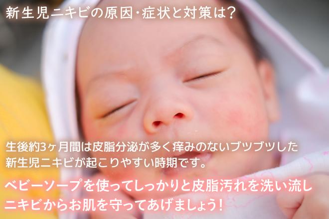 新生児ニキビの原因・症状と対策について
