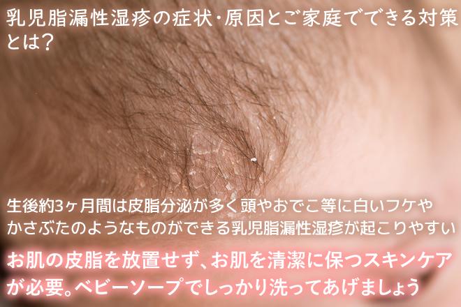 乳児脂漏性湿疹の症状・原因とご家庭でできる対策について