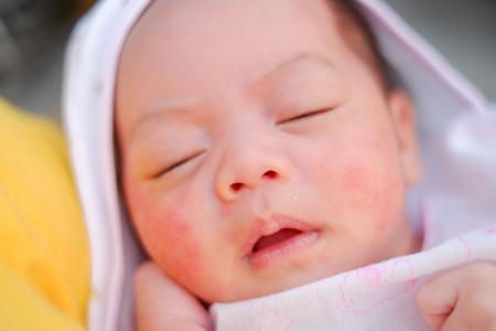 新生児ニキビとの違い